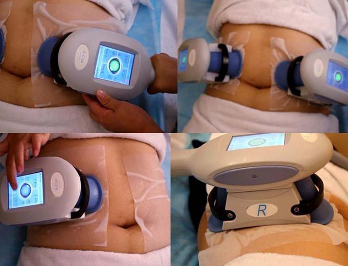 Non Invasive 2 Handles Vacuum Cryolipolysis Body Quick