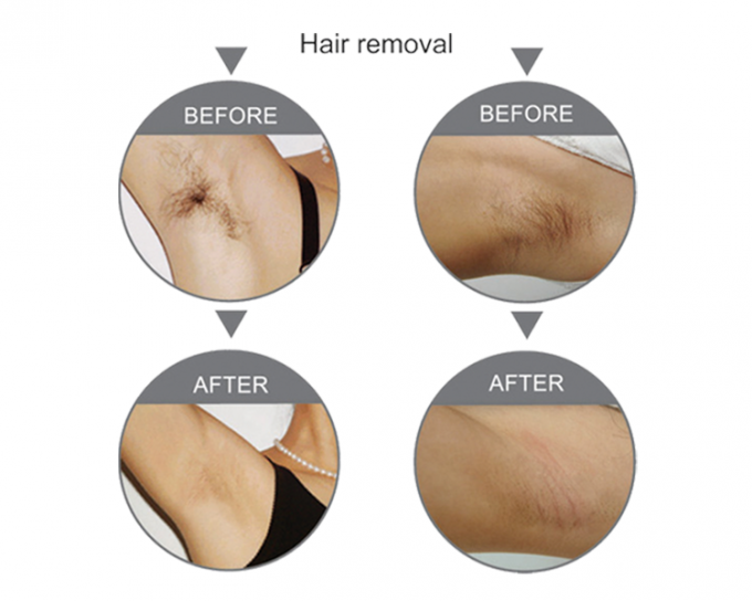 Portable Beauty Equipment Salon Use SHR Hair Removal With SPT / FCA Technology