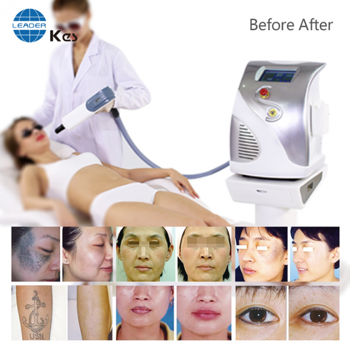 Adjustable Laser Tattoo Removal Equipment Max Energy 1065nm 800mJ 532nm 400mJ